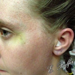 August 30: eye bruise and ear swelling