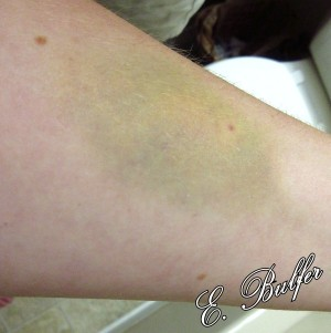 August 30: The IV bruise has gotten much more interesting at this point