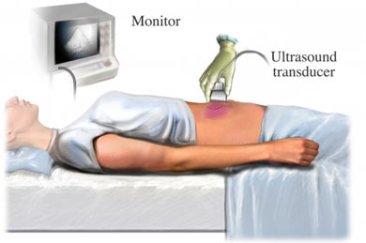 abdomen ultrasound