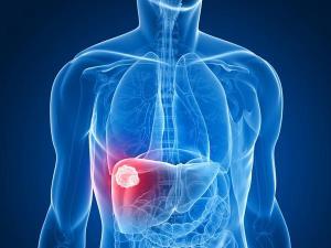 liver hemangioma