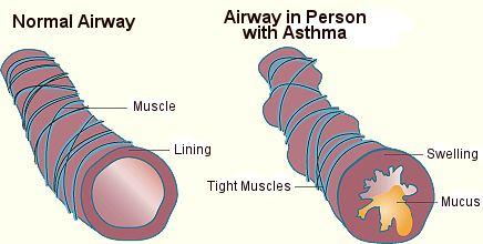 asthma-airways