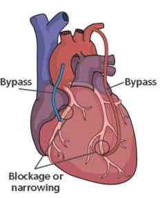 cardiac bypass