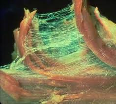 myofascial tissue between ribs