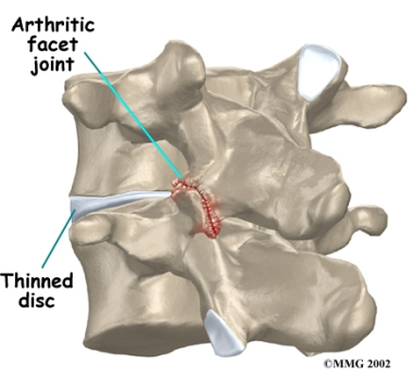 lumbar_facet_arthritis-from-houston-methodist