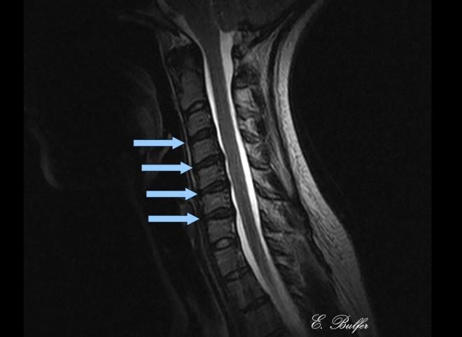 Upright Cervical MRI dessication showed signed