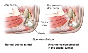 Medial view of healthy cubital tunnel vs. a compressed ulnar nerve in the cubital tunnel