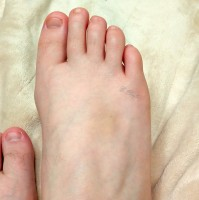 Close up of right foot showing large bruise.