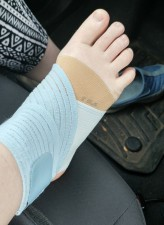 Sock-less foot in a brown brace and a blue brace on the ankle