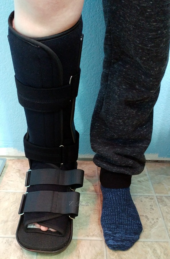 Two lower legs: one in a black boot for a broken foot, the other in sweat pants and a sock